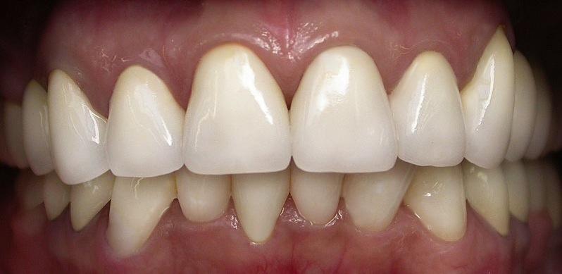 виниры на зубы цена в грозном